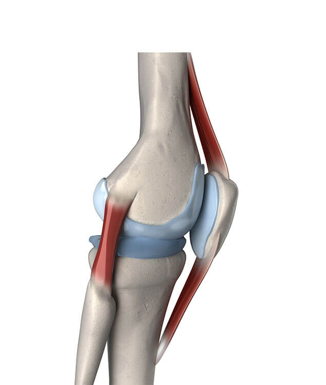3d rendered medically accurate illustration of the human knee showing right lateral knee anatomy including the lateral collateral ligament, the position of the patella and patellar ligaments to illustrate kneecap dislocation