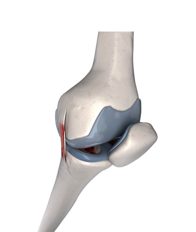 3d rendered medically accurate illustration of the human knee showing knee arthritis in a patient who falls in the treatment gap so could be suitable for the nstride aps knee injection