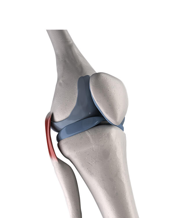 3d rendered medically accurate illustration of the human knee showing the anatomy of the knee when compressed together and where the forces are applied particularly for someone suffering from obesity-related knee pain